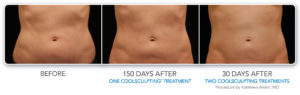 How much fat can I lose after CoolSculpting? | Beverly Hills Med Spa