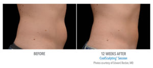 Does CoolSculpting Last Forever? | Beverly Hills Medical Spa