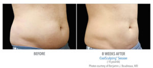 CoolSculpting Body Contouring Procedure Steps | Beverly Hills Med Spa