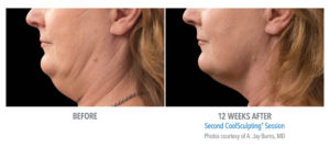 How to Reduce a Double Chin?  | Beverly Hills Coolsculpting