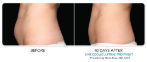 Non-Surgical Fat Reduction Treatment | CoolSculpting | Beverly Hills