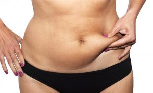 Coolsculpting Med Spa of Los Angeles   Beverly Hills