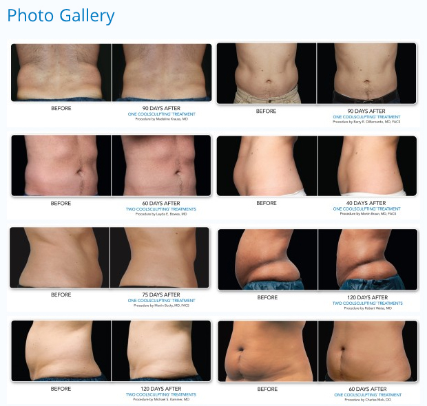 coolsculpting fat removal before and after photos